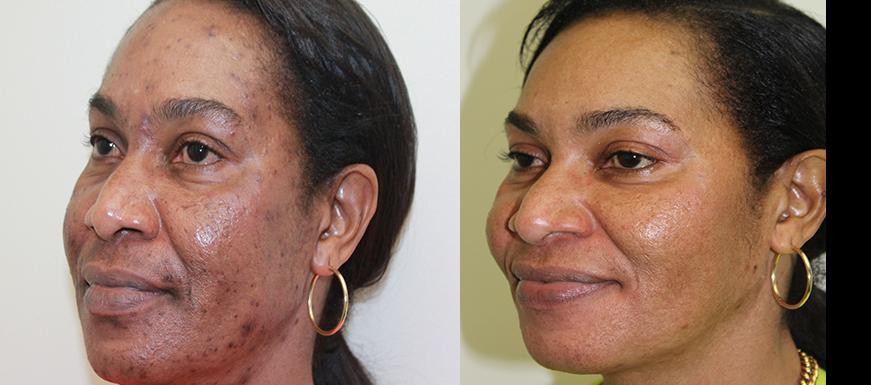 Laser Therapy Pre-treatment